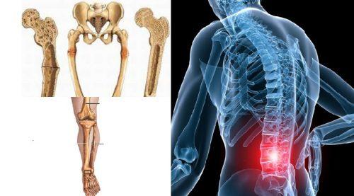 Phương pháp chẩn đoán ung thư xương