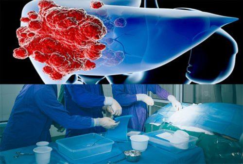 Phương pháp điều trị ung thư biểu mô