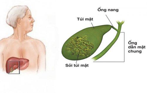 Phương pháp phòng ngừa bệnh ung thư túi mật
