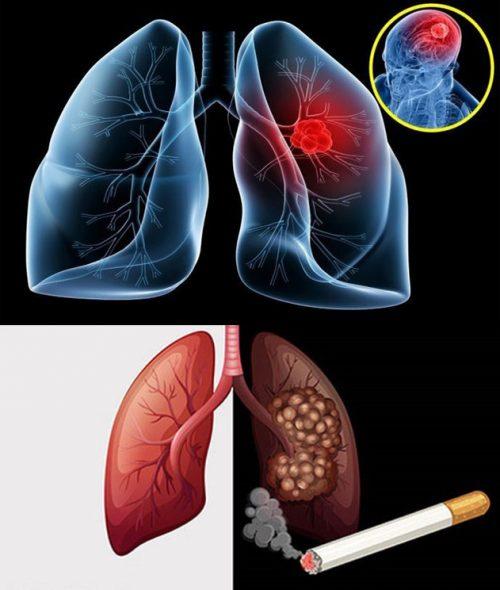 Thói quen sinh hoạt gây ung thư phổi
