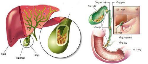 Thực phẩm phòng tránh ung thư túi mật là gì?
