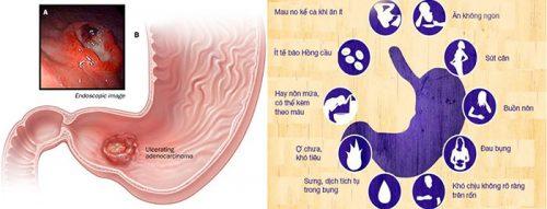 Triệu chứng bệnh ung thư dạ dày
