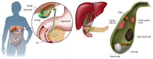 Triệu chứng bệnh ung thư túi mật