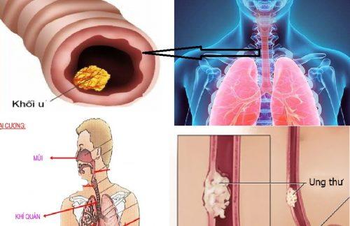 Triệu chứng ung thư khí quản