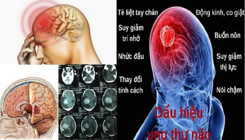 Triệu chứng ung thư não