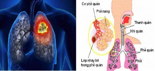 Triệu chứng ung thư phế quản