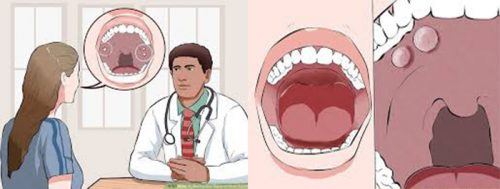 Ung thư biểu mô khoang miệng