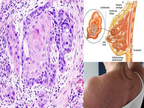 Ung thư biểu mô là gì?