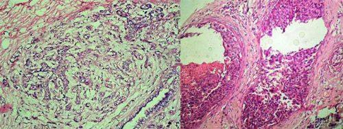 Ung thư biểu mô ống xâm lấn