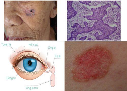 Ung thư biểu mô tế bào đáy