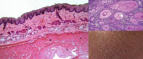 Ung thư biểu mô tế bào vảy