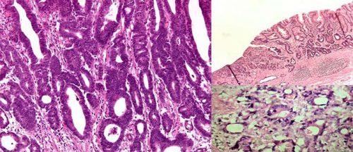 Ung thư biểu mô tuyến dạ dày