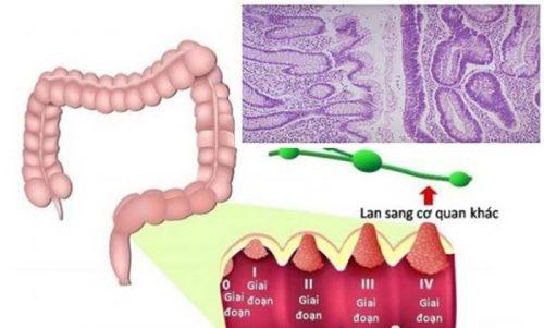 Ung thư biểu mô tuyến đại tràng