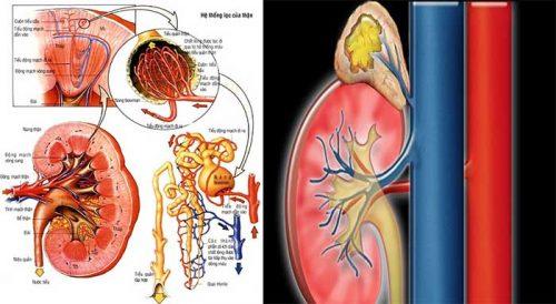 Ung thư biểu mô tuyến thượng thận