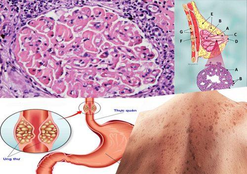Ung thư biểu mô với nguyên nhân triệu chứng và phương pháp điều trị bệnh