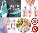 Ung thư cổ tử cung với nguyên nhân và biểu hiện ung thư cổ tử cung