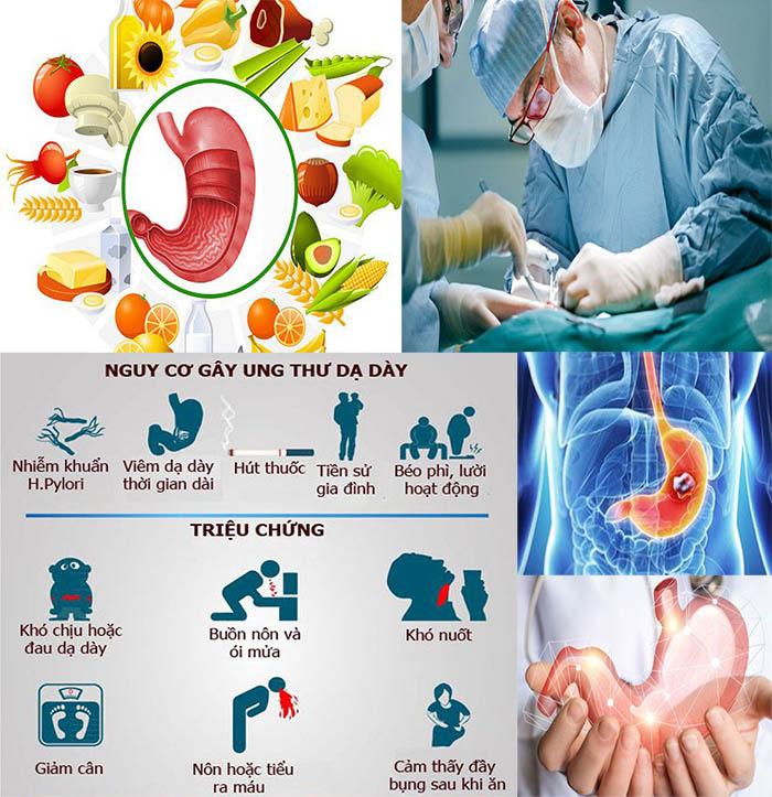 Ung thư dạ dày với nguyên nhân triệu chứng và các giai đoạn K dạ dày