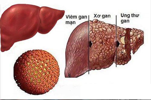 Ung thư gan là gì?