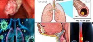 Ung thư khí quản và những điều cần biết