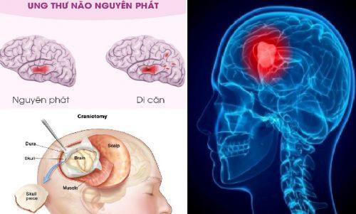 Ung thư não nguyên phát là gì?