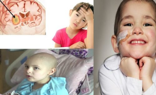 Ung thư não ở trẻ em
