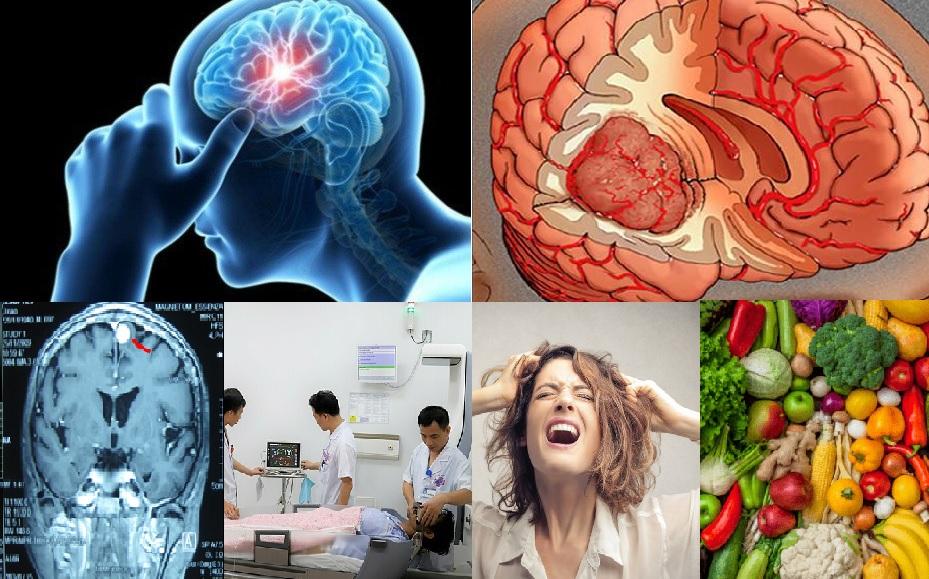 Ung thư não và các vấn đề liên quan