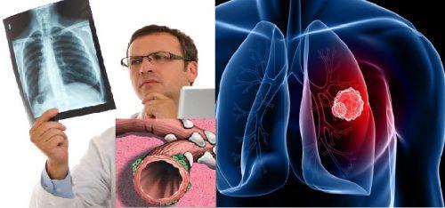 Ung thư phế quản phổi nguyên phát