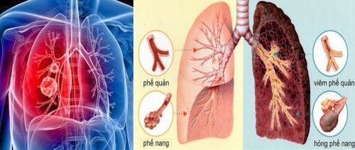 Ung thư phổi là gì?