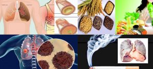 Ung thư phổi với nguyên nhân và biểu hiện các giai đoạn ung thư phổi