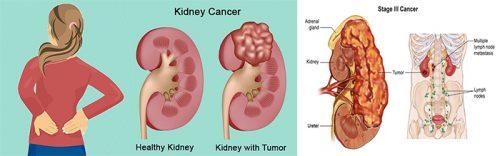 Ung thư thận là gì?