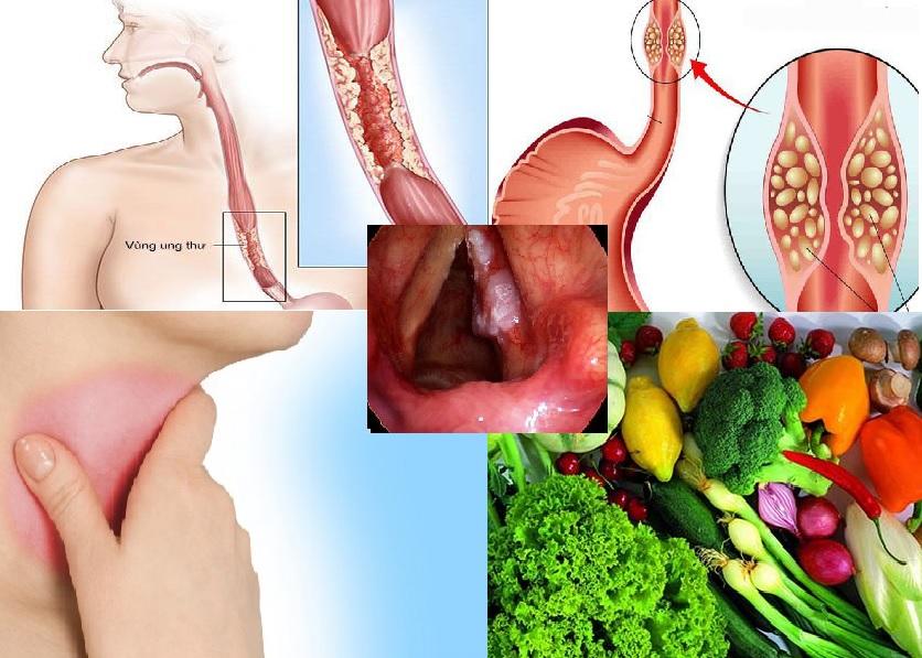 Ung thư thực quản và những vấn đề liên quan
