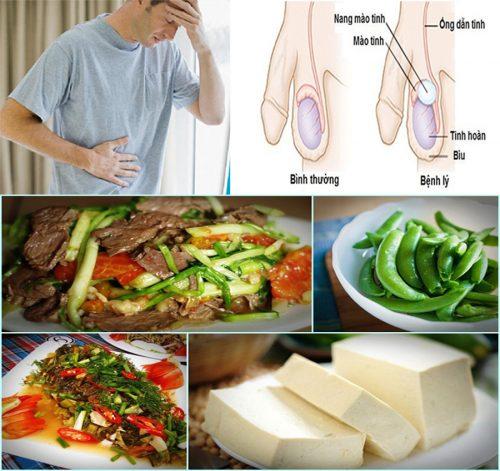 Ung thư tinh hoàn kiêng ăn gì?
