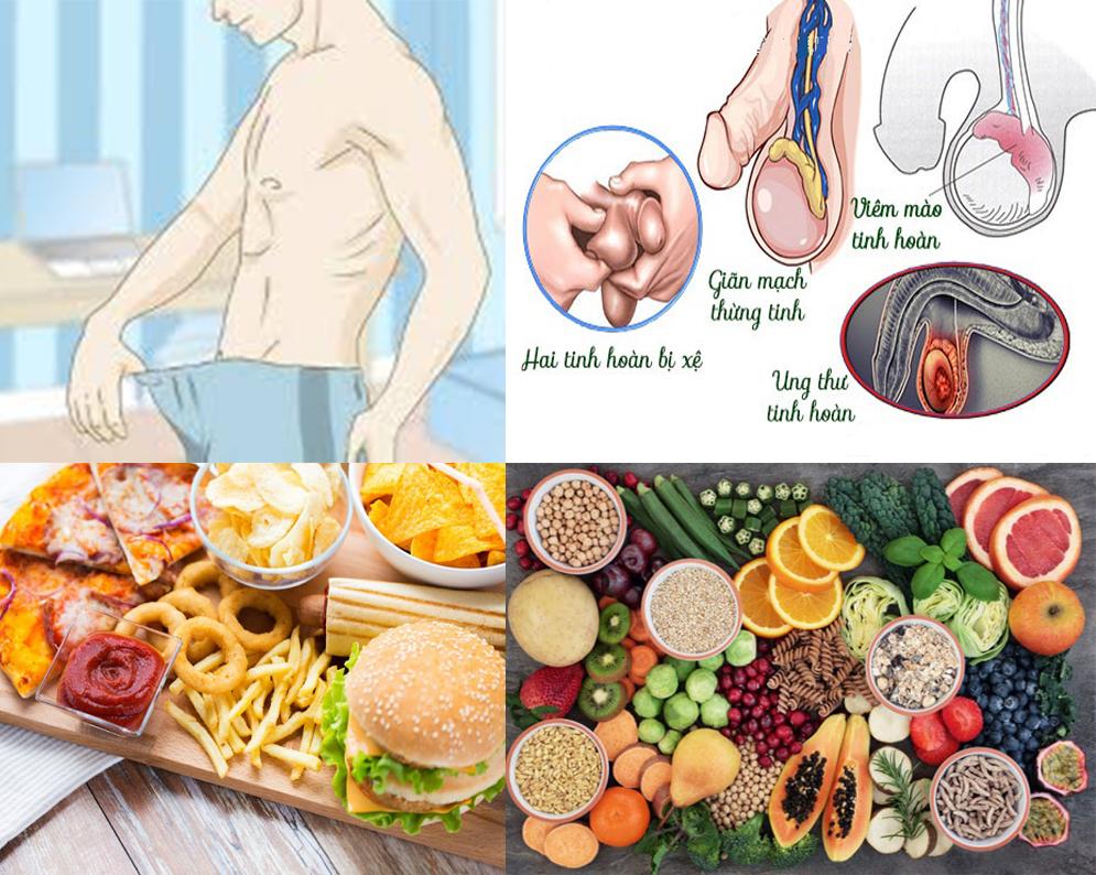 Ung thư tinh hoàn với nguyên nhân và biểu hiện các giai đoạn bệnh