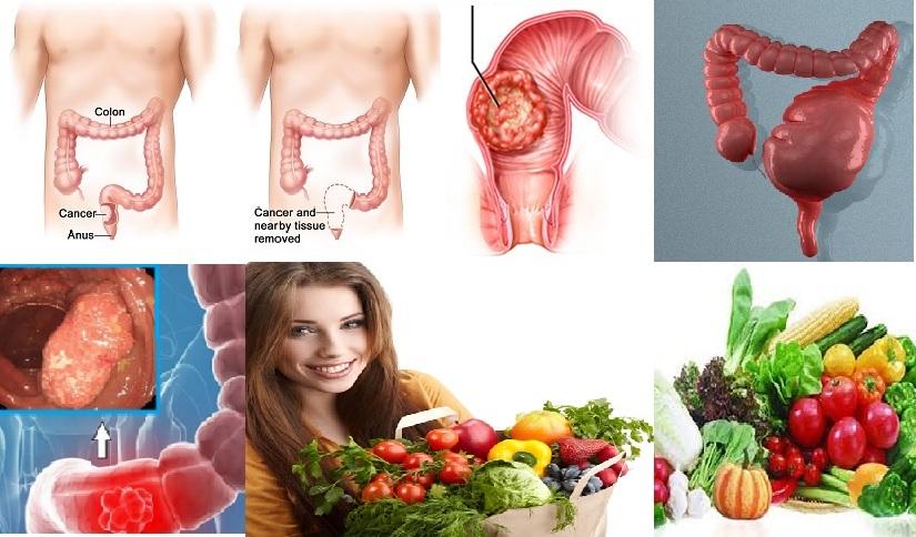 Ung thư trực tràng và những vấn đề liên quan