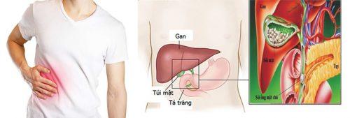 Ung thư túi mật kiêng ăn gì?