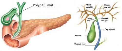 Ung thư túi mật là gì?