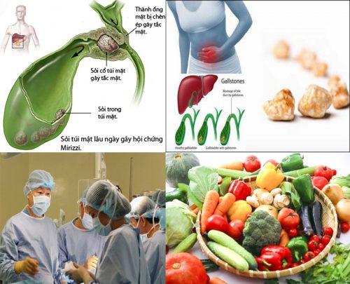 Ung thư túi mật với nguyên nhân và triệu chứng các giai đoạn bệnh