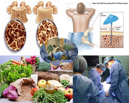 Ung thư tủy với nguyên nhân dấu hiệu và cách điều trị K tủy