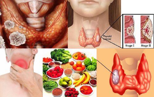 Ung thư tuyến giáp và những vấn đề liên quan