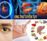 Ung thư tuyến tụy với nguyên nhân và biểu hiện các giai đoạn bệnh