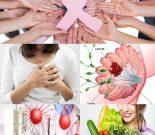 Ung thư vú với nguyên nhân và triệu chứng các giai đoạn bệnh