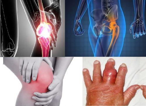 Ung thư xương kiêng gì?