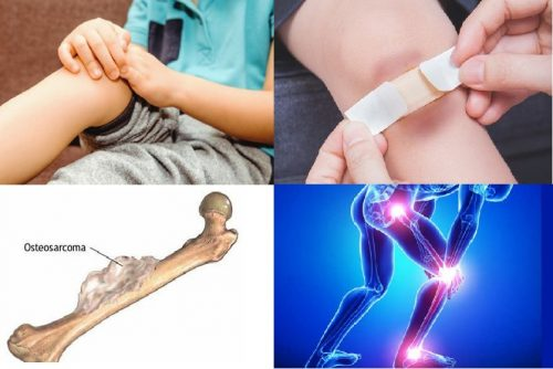 Ung thư xương ở trẻ em