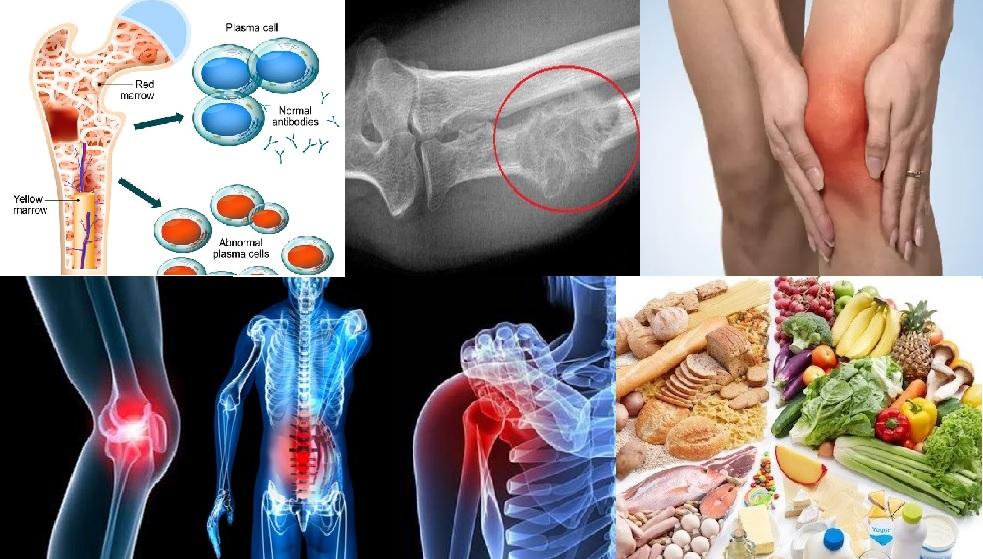 Ung thư xương và những vấn đề liên quan